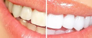 bijeljenje zuba sl1