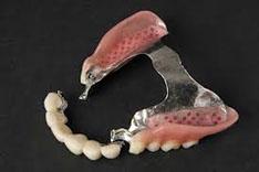 kombinovani rad(most sa skeletiranom protezom sl8