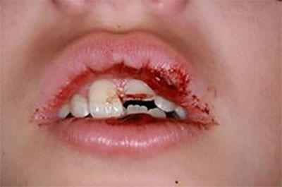 povreda zuba,sl5
