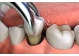 vadjenje zuba-sl1